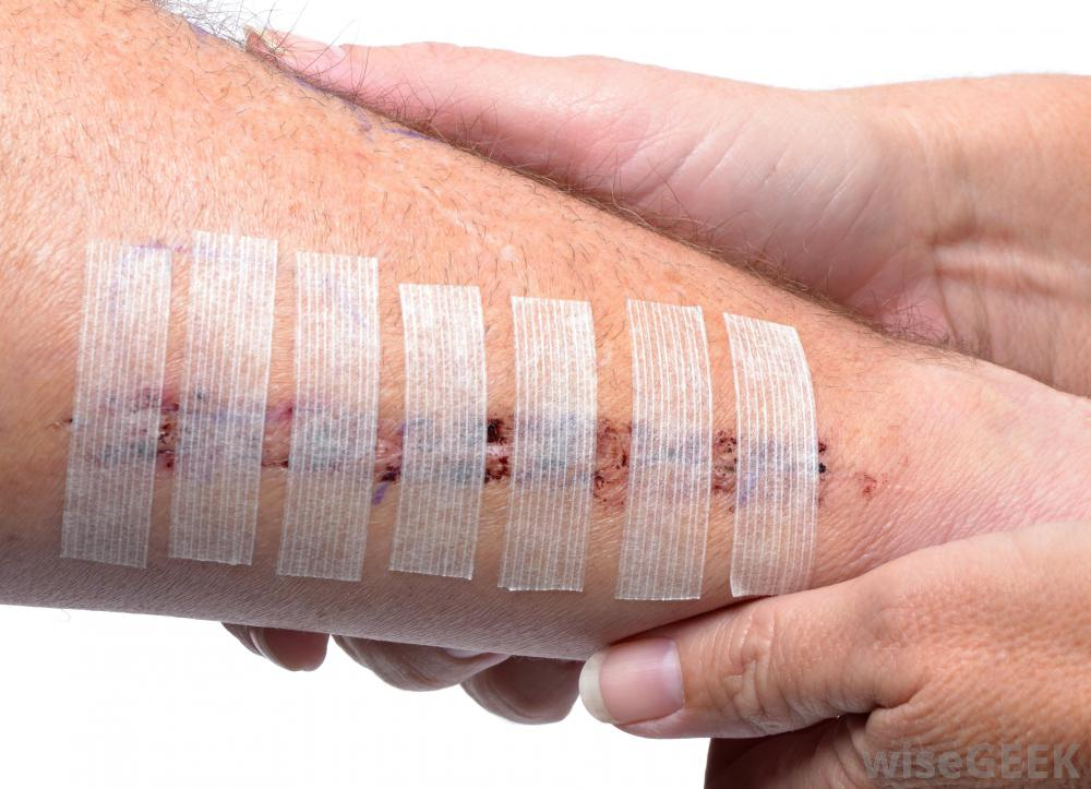 wound-covered-with-tape-near-hands